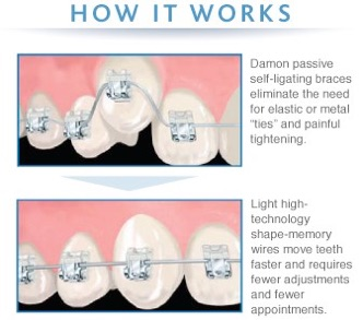Braces, Invisalign, Lingual braces, Speed braces Which One To ...